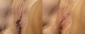 Patient 1b Vaginal Rejuvenation Before and After