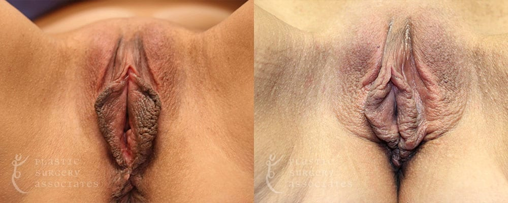 Patient 3 Vaginal Rejuvenation Before and After