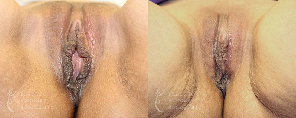 Patient 4 Vaginal Rejuvenation Before and After