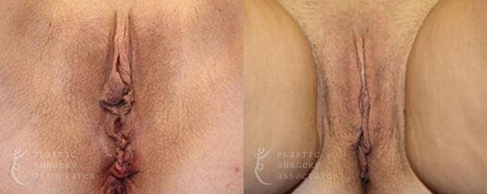 Patient 6a Labiaplasty Before and After