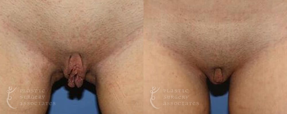 Patient 7 Labiaplasty Before and After