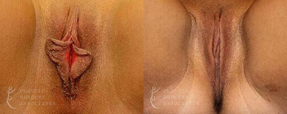 Patient 8 Labiaplasty Before and After