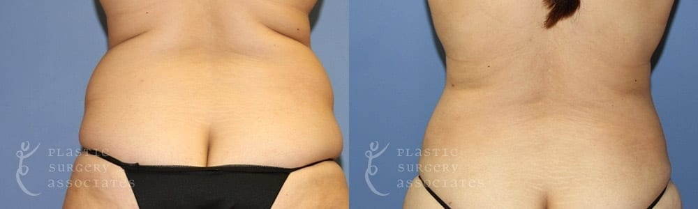 Patient 2 Liposuction Before and After