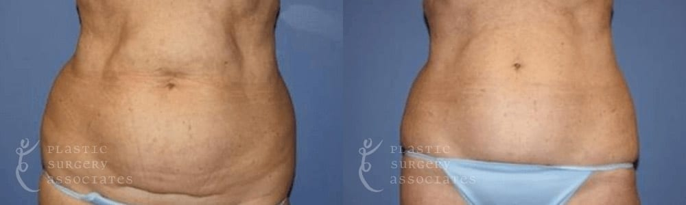 Patient 4 Liposuction Before and After Front View