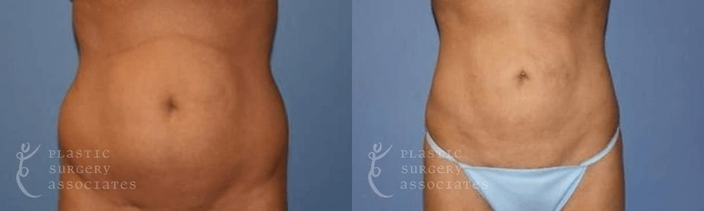 Patient 5 Liposuction Before and After Front View