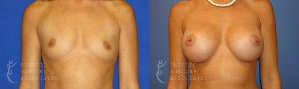 Patient 15 Mommy Makeover Before and After Front View