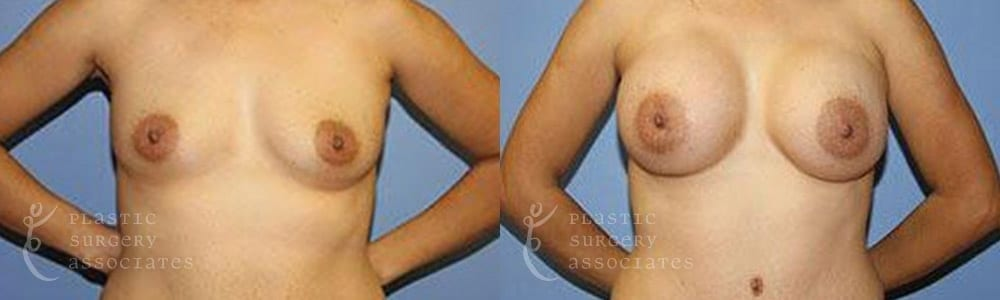 Patient 2 Mommy Makeover Before and After Front Breast View