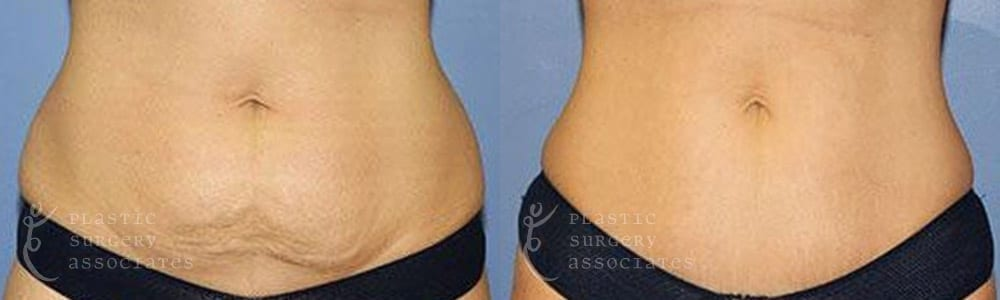 Patient 4 Mommy Makeover Before and After Front Abdominal View
