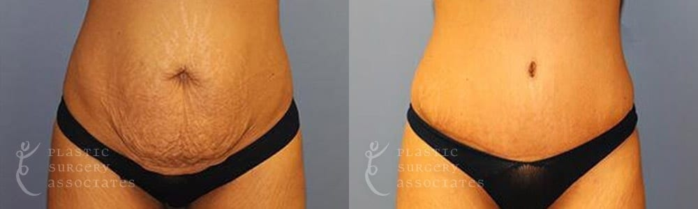 Patient 3a Tummy Tuck Before and After